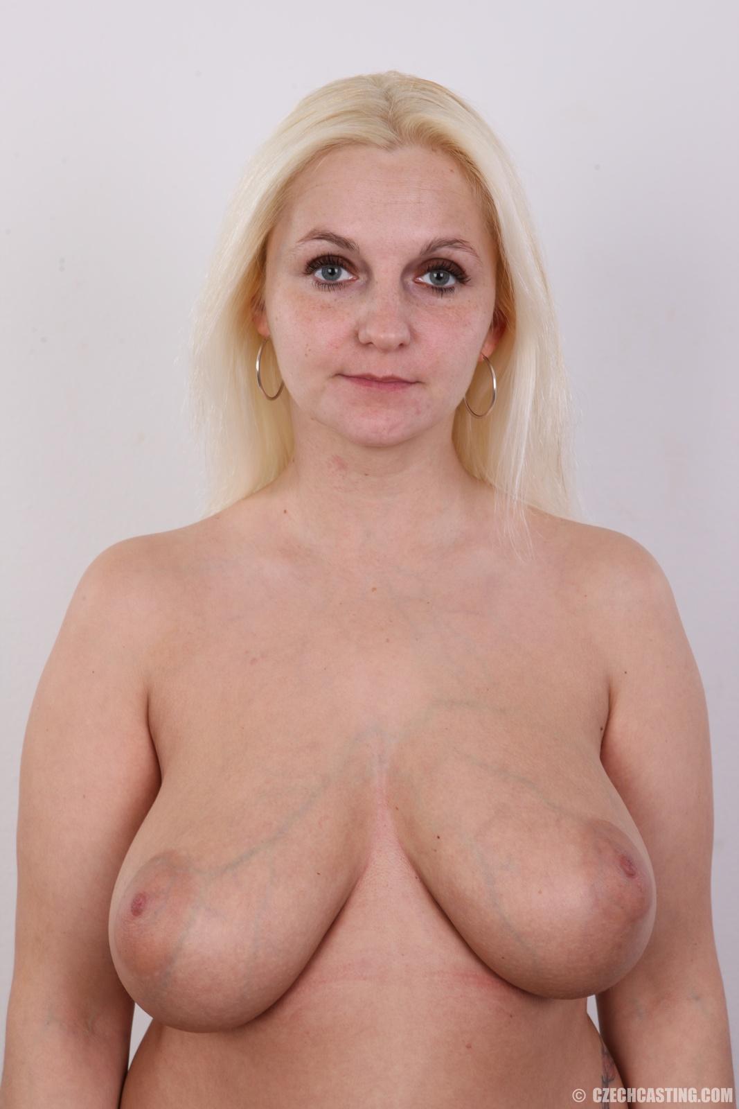 Фото молодых женщин с обвисшей грудью 25 фотография